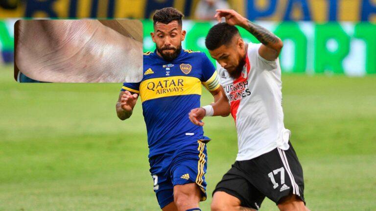 La impactante imagen del tobillo de Tevez tras el Superclásico del domingo
